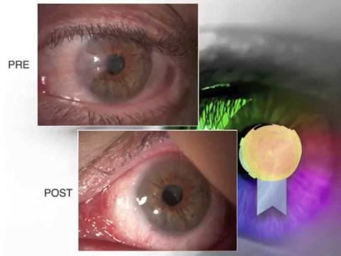 Intervento di Pterigio by Dr. Massimo Camellin presso SEKAL Micro Chirurgia Rovigo