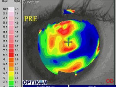 Questa topografia corneale mostra una cornea con alterazioni importanti della sua superficie prima dell'intervento. I diversi colori danno un'immagine molto irregolare e caotica della cornea stessa.