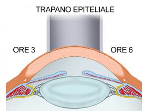 Trapano epiteliale