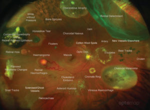 Diagnostic-Atlas-of-Retinal-Diseases-Optos